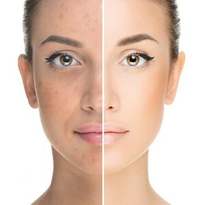Laser skin rejuvenation treatments by Beauty Spa in Canterbury Kent