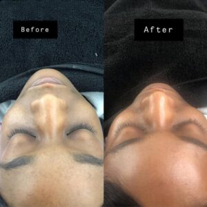dermaplaning before and after results by beauty spa
