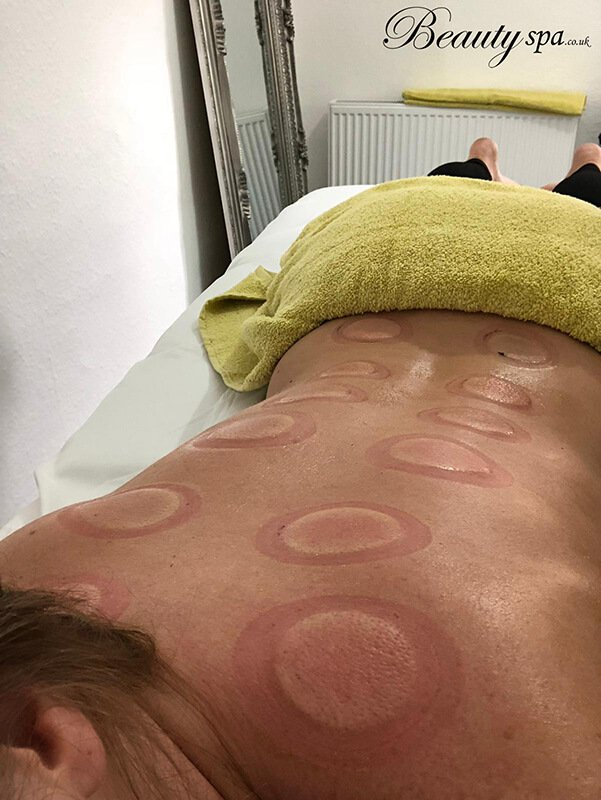 Cupping Treatments Canterbury By Beauty spa
