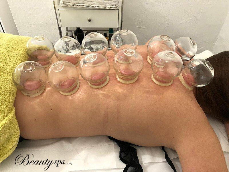 Canterbury-Cupping-massage-treatment-beauty-spa