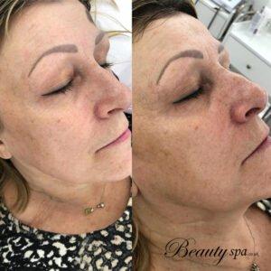Skincare Crabon Facial Beauty Spa salon