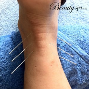 acupuncture treatment in Canterbury by Beauty Spa