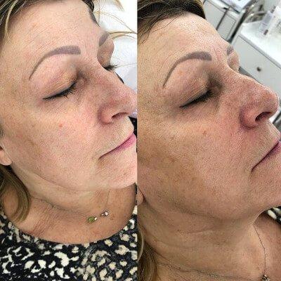 carbon facial treatment Canterbury Beauty Spa
