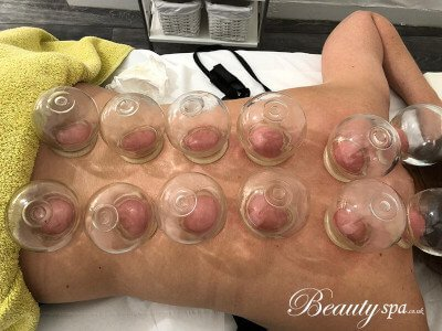 relaxing cupping massage in Canterbury by beauty spa