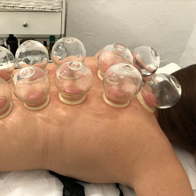 Cupping treatments in Canterbury will help release toxins