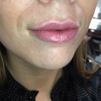 Dermal lip fillers with our Harley street trained dermatologist
