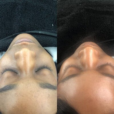 Dermaplaning in Canterbury by Beauty Spa