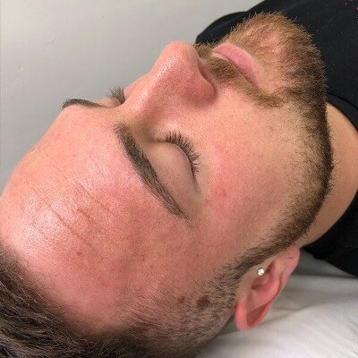 Microdermabrasion skin care facial treatment in Canterbury by Beauty Spa