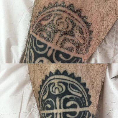 Canterbury Laser tattoo removal by beauty spa