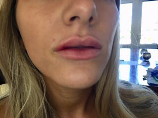 harley street dermal lip fillers by beauty spa canterbury
