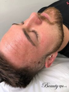 Microdermabrasion Skin Care Facial Treatment